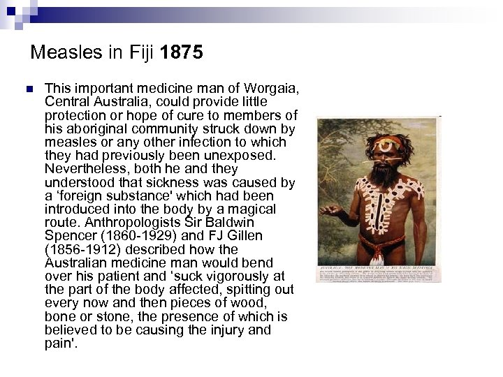 Measles in Fiji 1875 n This important medicine man of Worgaia, Central Australia, could
