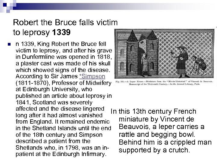 Robert the Bruce falls victim to leprosy 1339 n n 1339, King Robert the