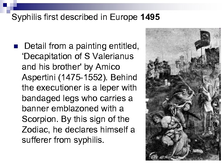 Syphilis first described in Europe 1495 n Detail from a painting entitled, 'Decapitation of