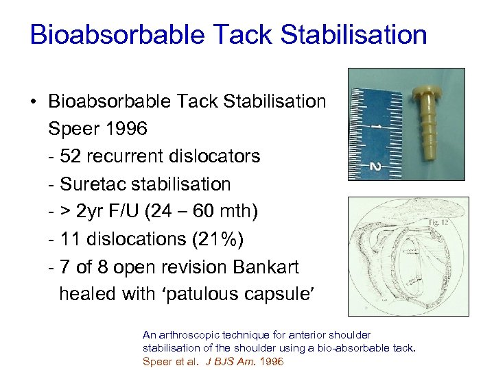 Bioabsorbable Tack Stabilisation • Bioabsorbable Tack Stabilisation Speer 1996 - 52 recurrent dislocators -