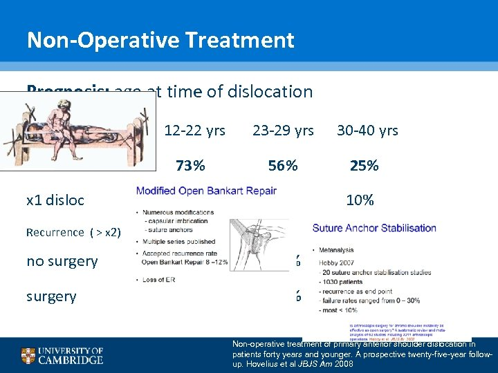 Non-Operative Treatment Prognosis: age at time of dislocation 12 -22 yrs 23 -29 yrs