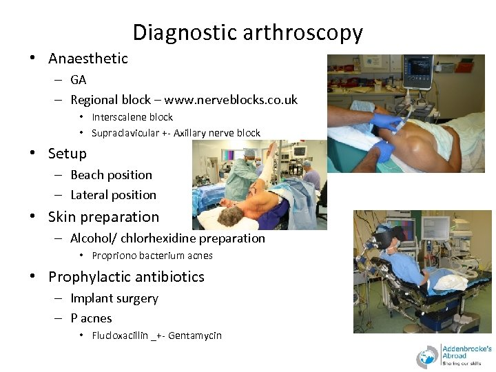 Diagnostic arthroscopy • Anaesthetic – GA – Regional block – www. nerveblocks. co. uk