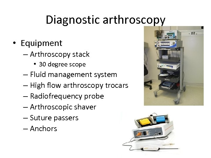 Diagnostic arthroscopy • Equipment – Arthroscopy stack • 30 degree scope – Fluid management