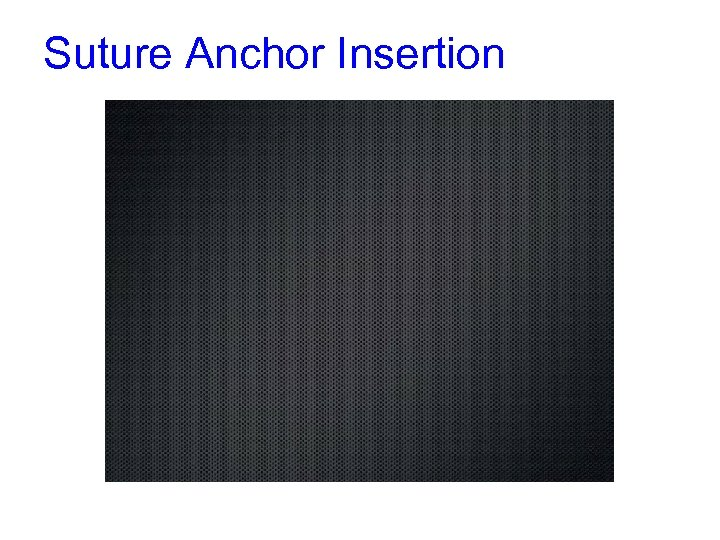Suture Anchor Insertion