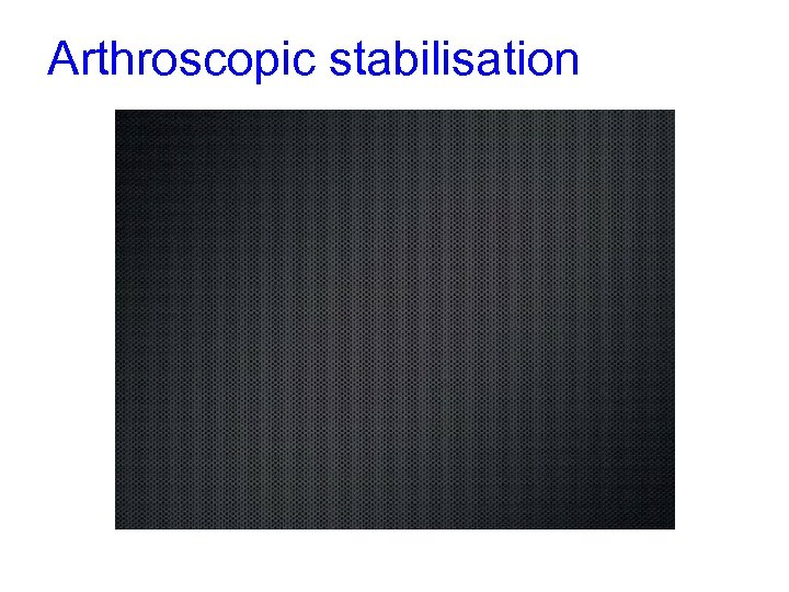 Arthroscopic stabilisation