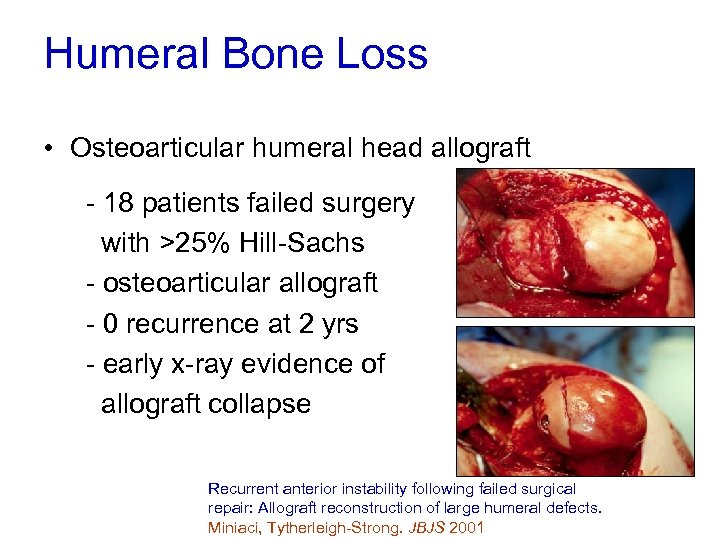 Humeral Bone Loss • Osteoarticular humeral head allograft - 18 patients failed surgery with