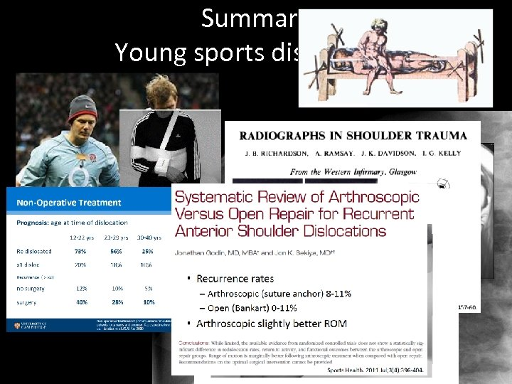 Summary Young sports dislocation 1 week