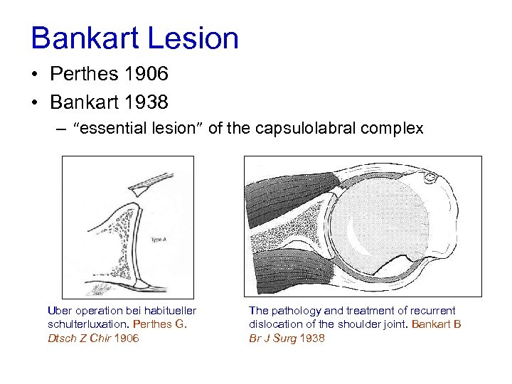 "Bankart Lesion • Perthes 1906 • Bankart 1938 – ""essential lesion"" of the capsulolabral"