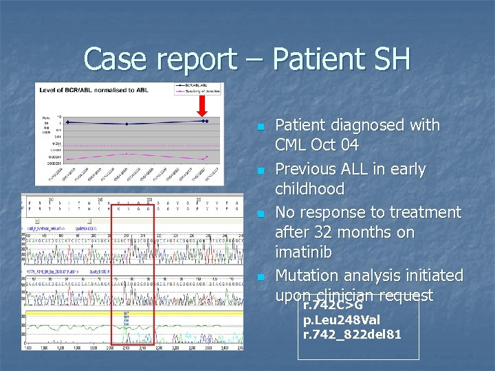 Case report – Patient SH n n Patient diagnosed with CML Oct 04 Previous