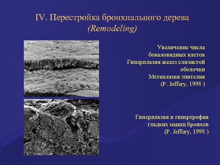 IV. Перестройка бронхиального дерева (Remodeling) Увеличение числа бокаловидных клеток Гиперплазия желез слизистой оболочки Метаплазия