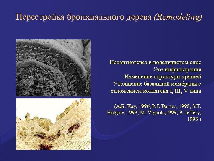 Перестройка бронхиального дерева (Remodeling) Неоангиогенез в подслизистом слое Эоз инфильтрация Изменение структуры хрящей Утолщение