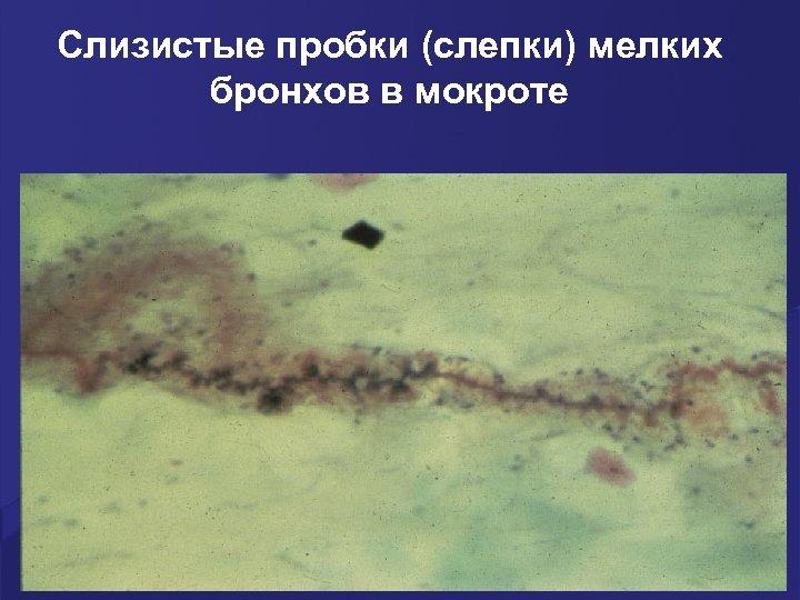 Слизистые пробки (слепки) мелких бронхов в мокроте