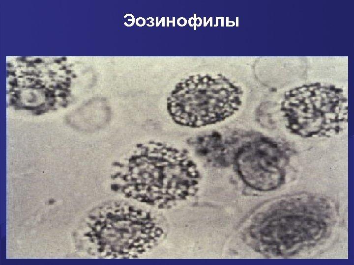Эозинофилы