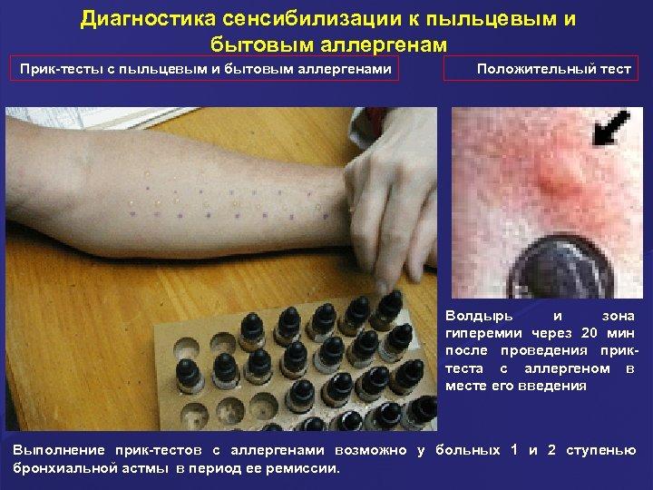 Диагностика сенсибилизации к пыльцевым и бытовым аллергенам Прик-тесты с пыльцевым и бытовым аллергенами Положительный
