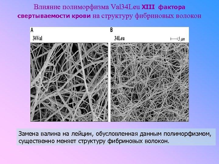 Влияние полиморфизма Val 34 Leu XIII фактора свертываемости крови на структуру фибриновых волокон Замена