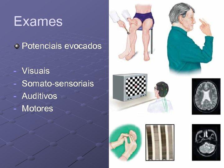 Exames Potenciais evocados - Visuais Somato-sensoriais Auditivos Motores