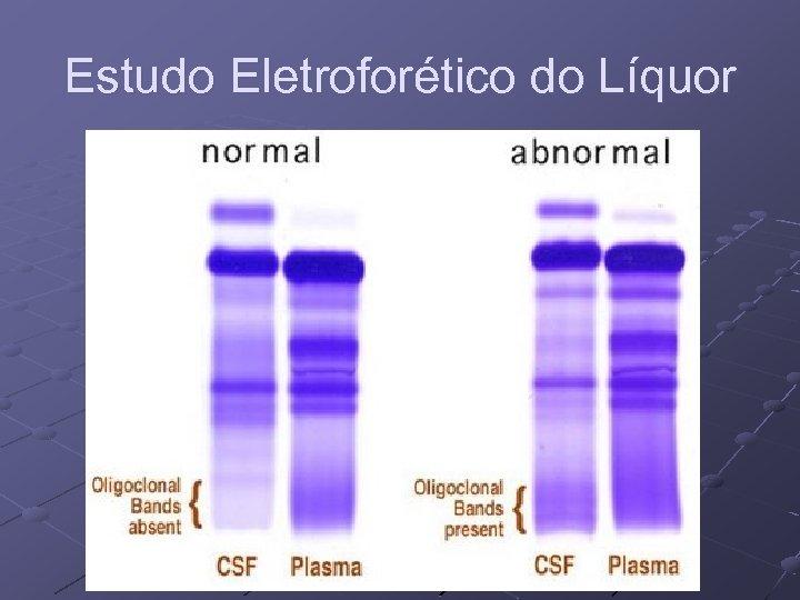 Estudo Eletroforético do Líquor