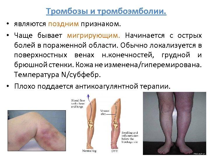 Тромбозы и тромбоэмболии. • являются поздним признаком. • Чаще бывает мигрирующим. Начинается с острых