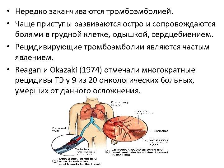• Нередко заканчиваются тромбоэмболией. • Чаще приступы развиваются остро и сопровождаются болями в