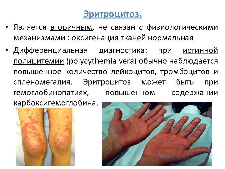 Эритроцитоз. • Является вторичным, не связан с физиологическими механизмами : оксигенация тканей нормальная •