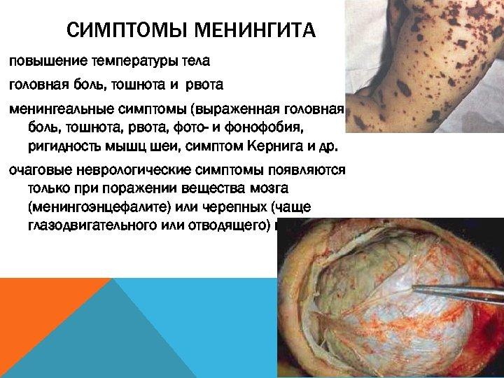 СИМПТОМЫ МЕНИНГИТА повышение температуры тела головная боль, тошнота и рвота менингеальные симптомы (выраженная головная