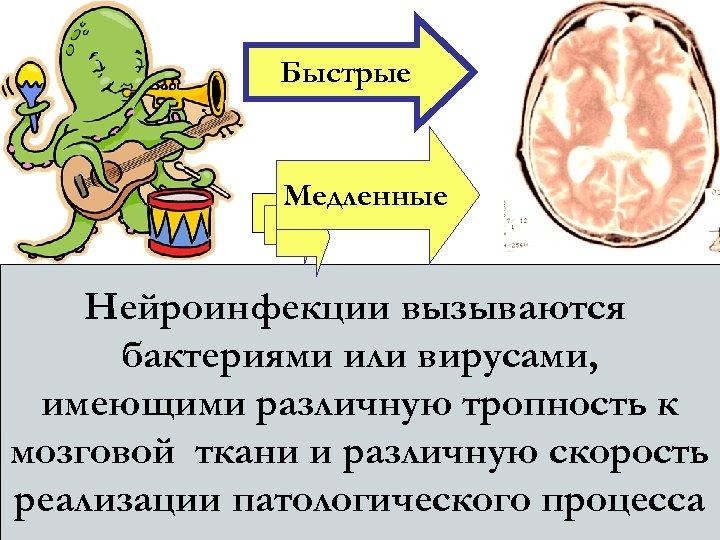 Быстрые Медленные Нейроинфекции вызываются бактериями или вирусами, имеющими различную тропность к мозговой ткани и