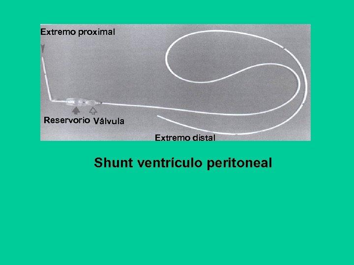 Extremo proximal Reservorio Válvula Extremo distal Shunt ventrículo peritoneal