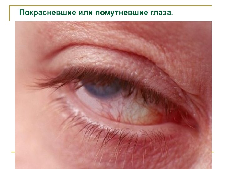 Покрасневшие или помутневшие глаза.