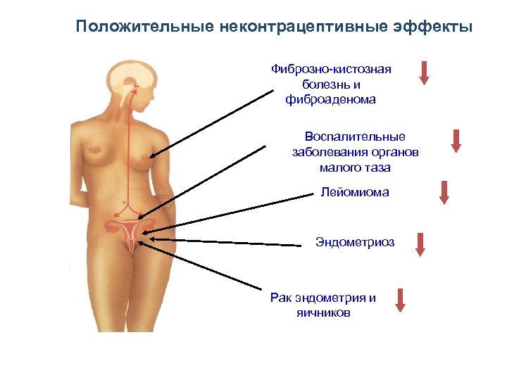 Положительные неконтрацептивные эффекты Фиброзно-кистозная болезнь и фиброаденома Воспалительные заболевания органов малого таза Лейомиома Эндометриоз