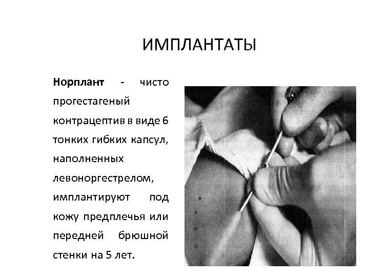 ИМПЛАНТАТЫ Норплант - чисто прогестагеный контрацептив в виде 6 тонких гибких капсул, наполненных левоноргестрелом,