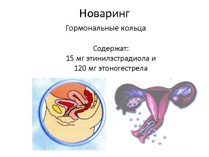 Новаринг Гормональные кольца Содержат: 15 мг этинилэстрадиола и 120 мг этоногестрела