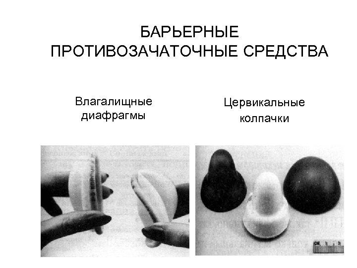 БАРЬЕРНЫЕ ПРОТИВОЗАЧАТОЧНЫЕ СРЕДСТВА Влагалищные диафрагмы Цервикальные колпачки