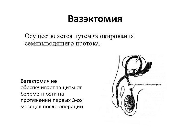 Вазэктомия Осуществляется путем блокирования семявыводящего протока. Вазэктомия не обеспечивает защиты от беременности на