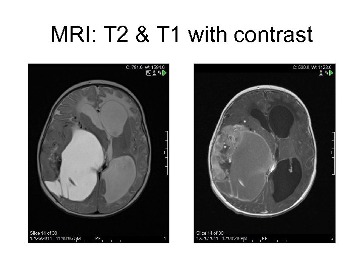 MRI: T 2 & T 1 with contrast