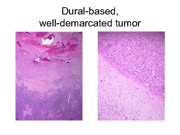 Dural-based, well-demarcated tumor