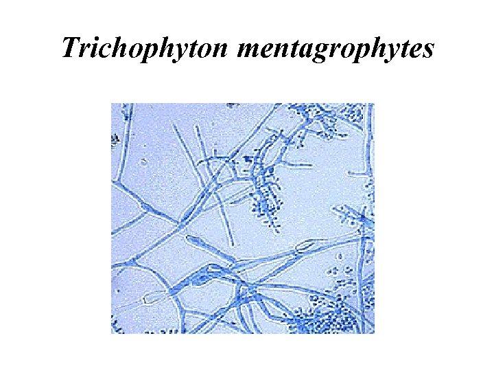 Trichophyton mentagrophytes