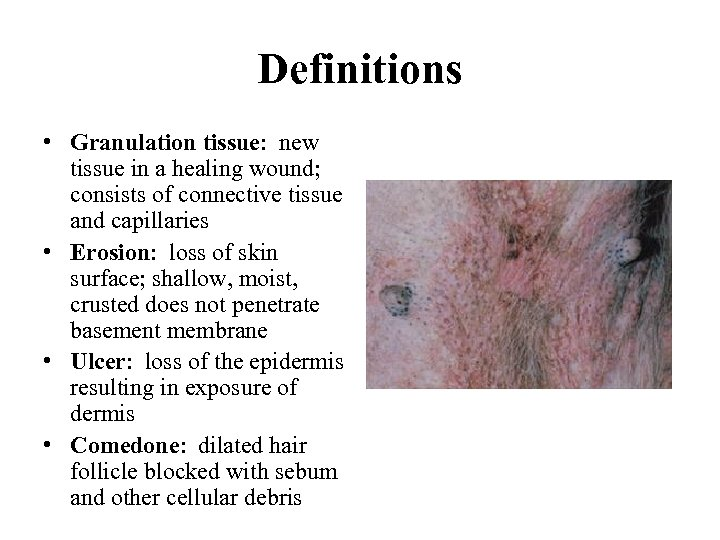 Definitions • Granulation tissue: new tissue in a healing wound; consists of connective tissue
