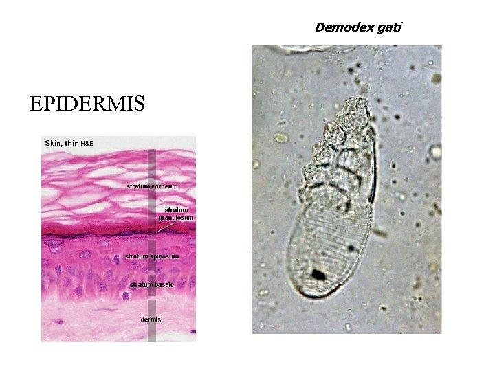 Demodex gati EPIDERMIS