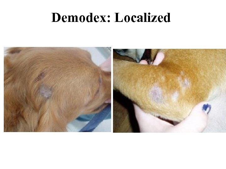 Demodex: Localized