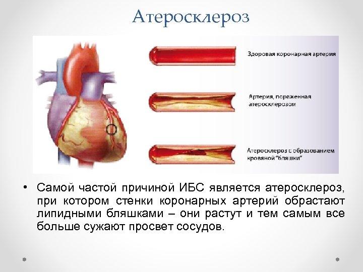 Атеросклероз • Самой частой причиной ИБС является атеросклероз, при котором стенки коронарных артерий обрастают