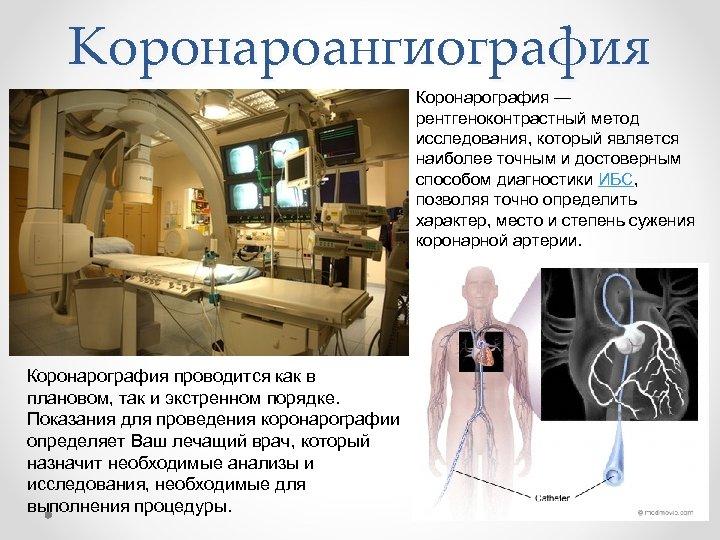 Коронароангиография Коронарография — рентгеноконтрастный метод исследования, который является наиболее точным и достоверным способом диагностики