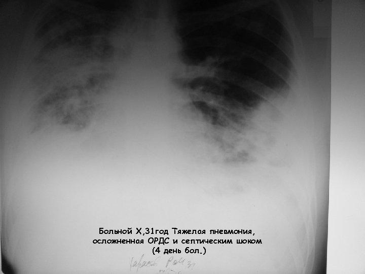 Больной Х, 31 год Тяжелая пневмония, осложненная ОРДС и септическим шоком (4 день бол.