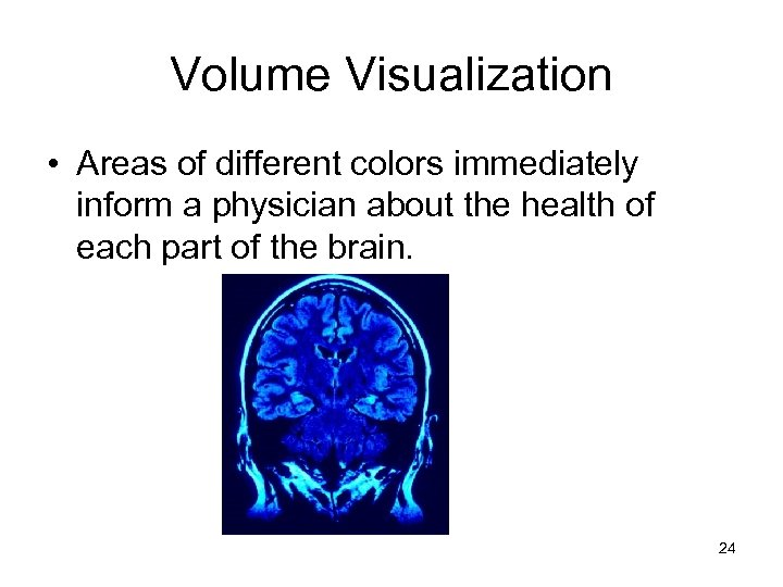 Volume Visualization • Areas of different colors immediately inform a physician about the health