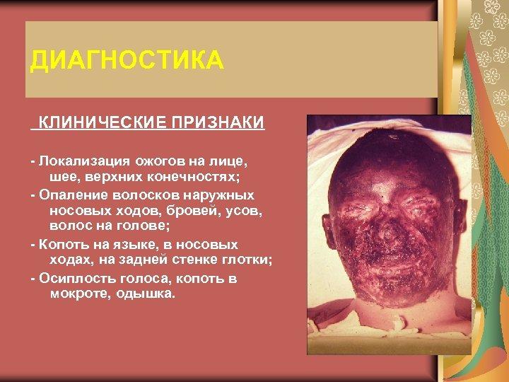 ДИАГНОСТИКА КЛИНИЧЕСКИЕ ПРИЗНАКИ - Локализация ожогов на лице, шее, верхних конечностях; - Опаление волосков