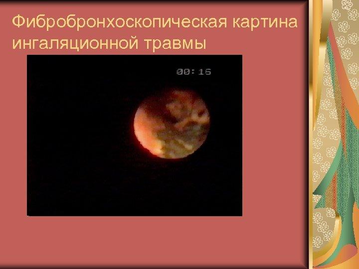 Фибробронхоскопическая картина ингаляционной травмы
