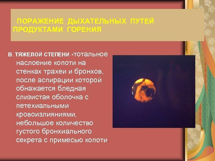 ПОРАЖЕНИЕ ДЫХАТЕЛЬНЫХ ПУТЕЙ ПРОДУКТАМИ ГОРЕНИЯ В. ТЯЖЕЛОЙ СТЕПЕНИ -тотальное наслоение копоти на стенках трахеи