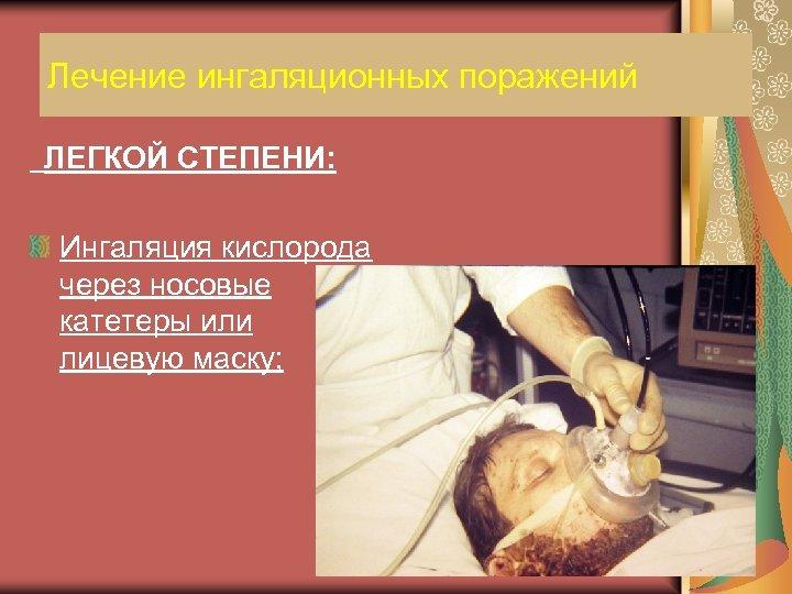Лечение ингаляционных поражений ЛЕГКОЙ СТЕПЕНИ: Ингаляция кислорода через носовые катетеры или лицевую маску;