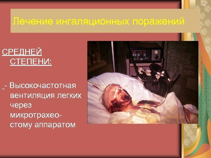 Лечение ингаляционных поражений СРЕДНЕЙ СТЕПЕНИ: - Высокочастотная вентиляция легких через микротрахеостому аппаратом