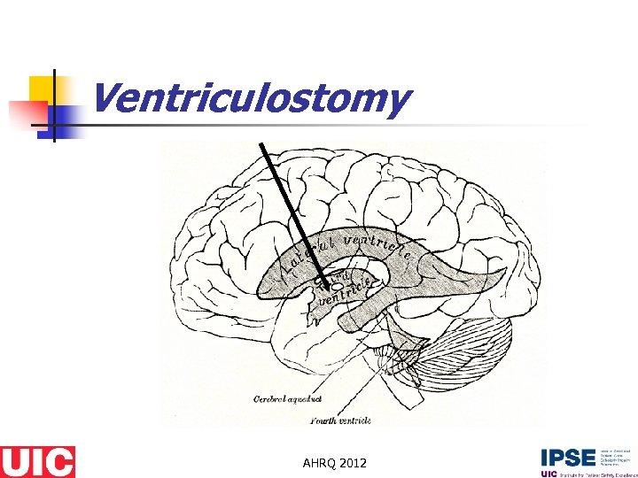 Ventriculostomy AHRQ 2012