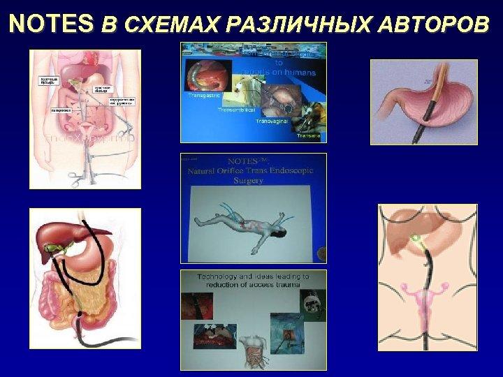 NOTES В СХЕМАХ РАЗЛИЧНЫХ АВТОРОВ